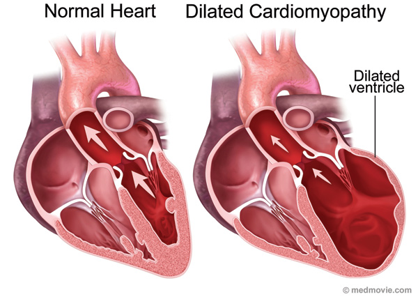 dilated cardiomyopathy (dcm) causes | medical mnemonics, Skeleton